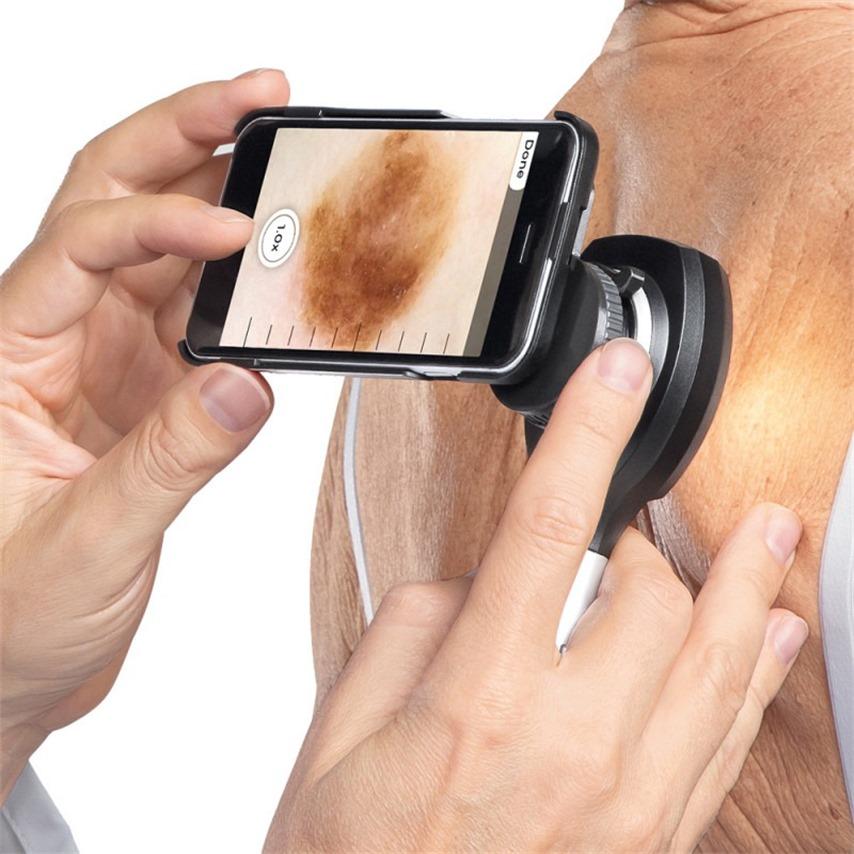 Heine  N C2  Dermatoscope 6  Thumbnail0
